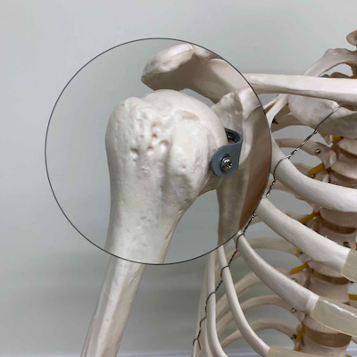 【整形外科テスト】上腕二頭筋長頭腱炎の記事に添付されている画像