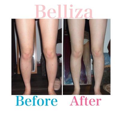 ★足痩せ+前張りコースの変化★の記事に添付されている画像