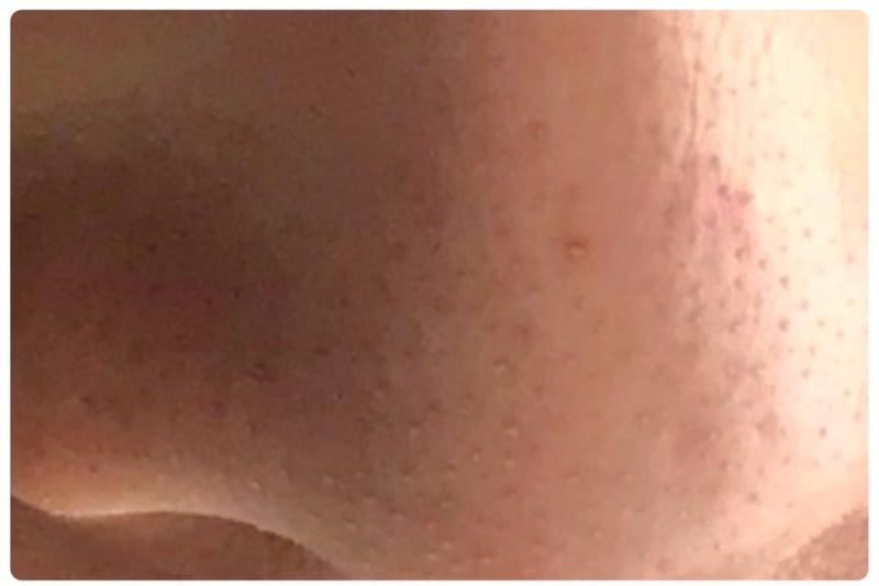 鼻 の ザラザラ 解消