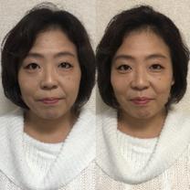 自分の手が美顔器がわりになる驚きの小顔矯正とは?の記事に添付されている画像