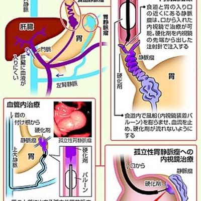 今日 21時からNHK  テレビ 隠れ脂肪肝スペシャル あきら筋トレの記事に添付されている画像