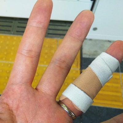 【趣味】バスケ DAY52 怪我と病気の記事に添付されている画像