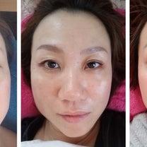 若返り顔を小さくする小顔エステ・小顔矯正 グリーンピール 他店より変化したと喜んの記事に添付されている画像
