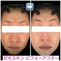 ☆ゼオスキンで劇的にお肌が変わる ビフォーアフター☆の記事に添付されている画像