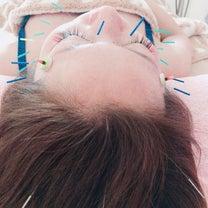 NHKで美容鍼の記事に添付されている画像