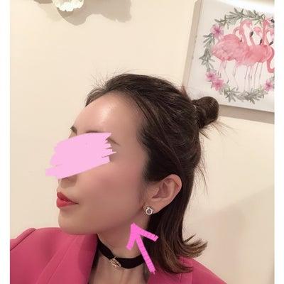 顎関節症 歯ぎしり改善 ★☆★ ボトックスの効果が!の記事に添付されている画像