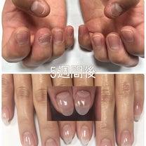 深爪を改善♡ネイルサロンNAILX栄ガスビルの記事に添付されている画像