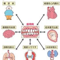 口腔内フローラとCBS、筋肉反応テストの記事に添付されている画像