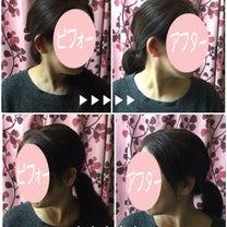 顔のしわってお首のゆがみも原因してるの⁉️の記事に添付されている画像
