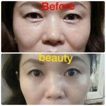 ルビーセルは若返る化粧品!の記事に添付されている画像