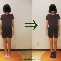子供姿勢矯正の効果実績です!の記事に添付されている画像