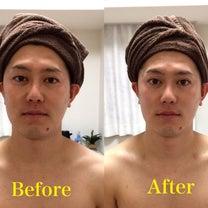 男性だって、小顔で引き締まった美肌の方が素敵です☆の記事に添付されている画像
