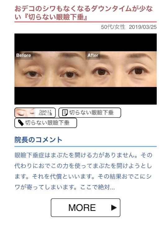 眼瞼 下垂 ダウン タイム