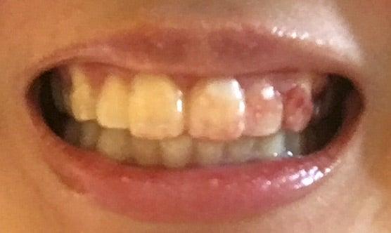 止まら が 抜歯 ない 血 親知らずや歯の抜歯後、血が止まらない時の対処法