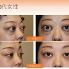 バセドウ病眼症の手術をしてみて分かることの記事より