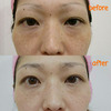 肌質改善[眉・シミのお悩み]施術内容の画像