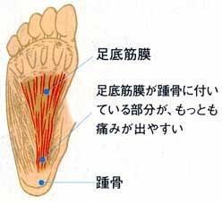 足 の 裏側 が つる 太ももの裏側が痛い病気は坐骨神経痛や閉塞性動脈硬化症かも。治し方...
