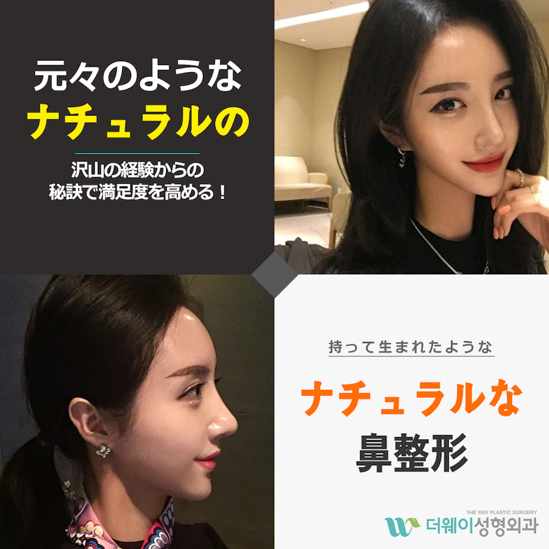 韓国 鼻 整形 有名