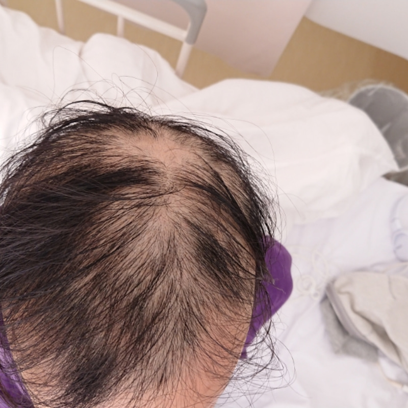 脱毛 症 円形 子供 子供の円形脱毛症(小児円形脱毛症)