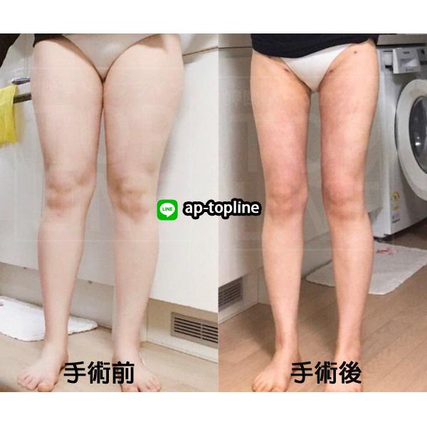 韓国 脂肪 吸引 韓国で脂肪吸引したい!気になる値段や人気美容外科をご紹介!