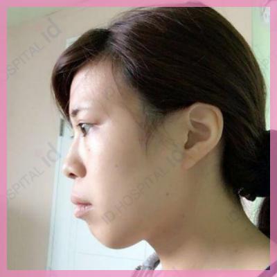 明治 コスプレイヤー 輪郭整形 両顎手術 目整形 鼻整形