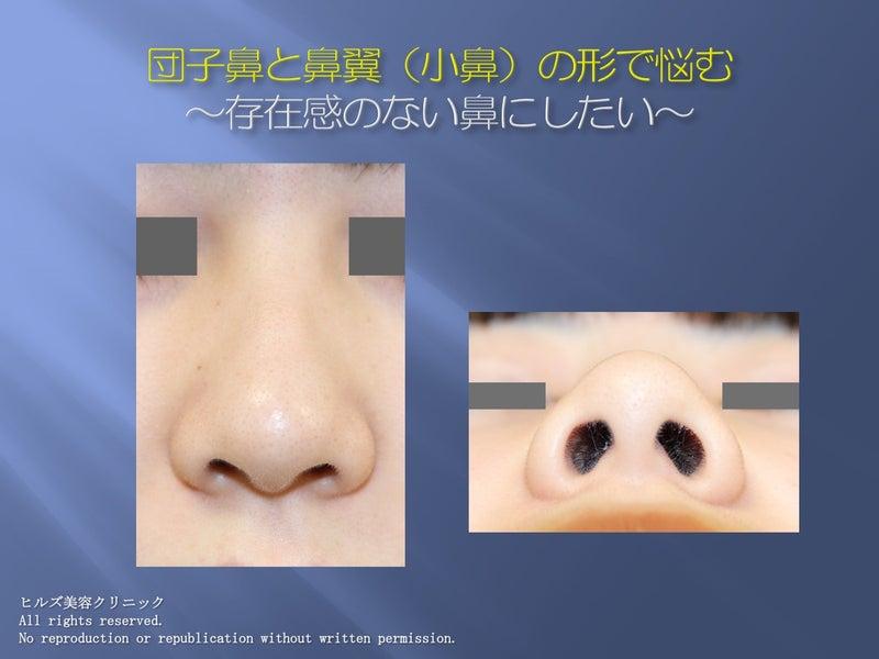 団子鼻 存在感のある鼻