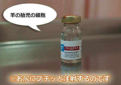 フィロルガ注射の画像