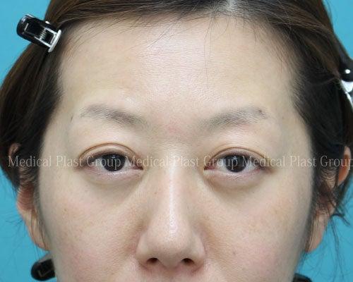プラスト 裏 を っ ハムラ く 目の下 方法 に 治す クマ くり の 経結膜脱脂法