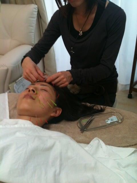 鍼灸師の技術講座