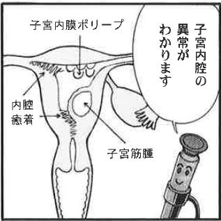 手術 ポリープ 内 費用 膜 子宮