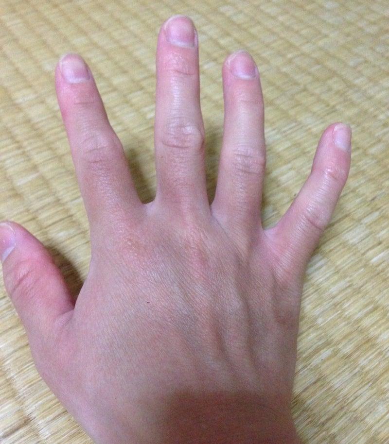 皮膚筋炎。手の色。   たぶん膠原病。ボチボチ行くさ。