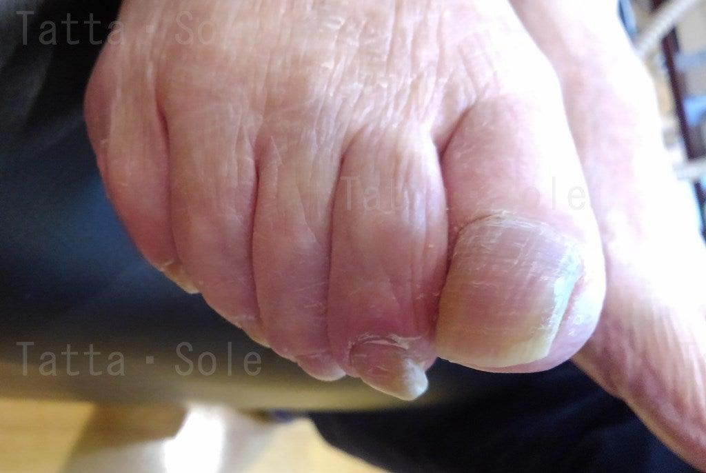 高齢者の爪切りケア