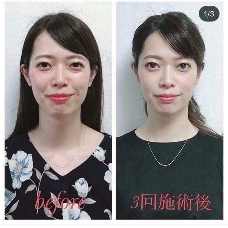 黒沢あゆみ