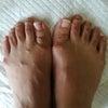フットケアとわたしの足の画像