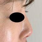 鼻の新しいメニュー★PCLメッシュ+ヒアルロン酸の記事より