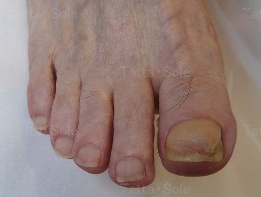 ほとんどきれいになってきた爪