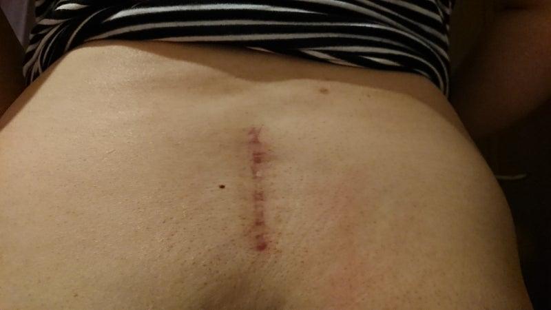 記 腰椎 すべり 体験 症 手術