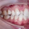 22歳 女性 凸凹が主訴 小臼歯4本抜歯・マルチブラットにて2年10カ月の治療が終了しました。の画像