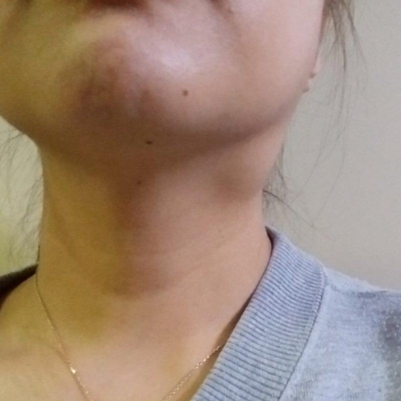 が ある にしこり 首 首にしこり・腫れがある(甲状腺疾患など)|東大阪のながた耳鼻咽喉科クリニック