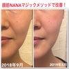 ほうれい線と目の下の膨らみが改善した方法!Mさん42歳のプチ整形なしのビフォーアフター画像☆の画像