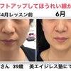 頬がリフトアップすれば ほうれい線は消えてくる法則の顔筋NANAマジックメソッドJさんビフォアの画像