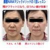 自分の手で眉間のシワが消えた!ほうれい線が薄くなった!Yさん47歳のビフォーアフター体験談☆の画像