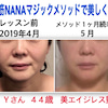 顔筋マジックを1ヶ月間続けた結果☆ビフォーアフターYさん44歳、ほうれい線が消えた?!の画像