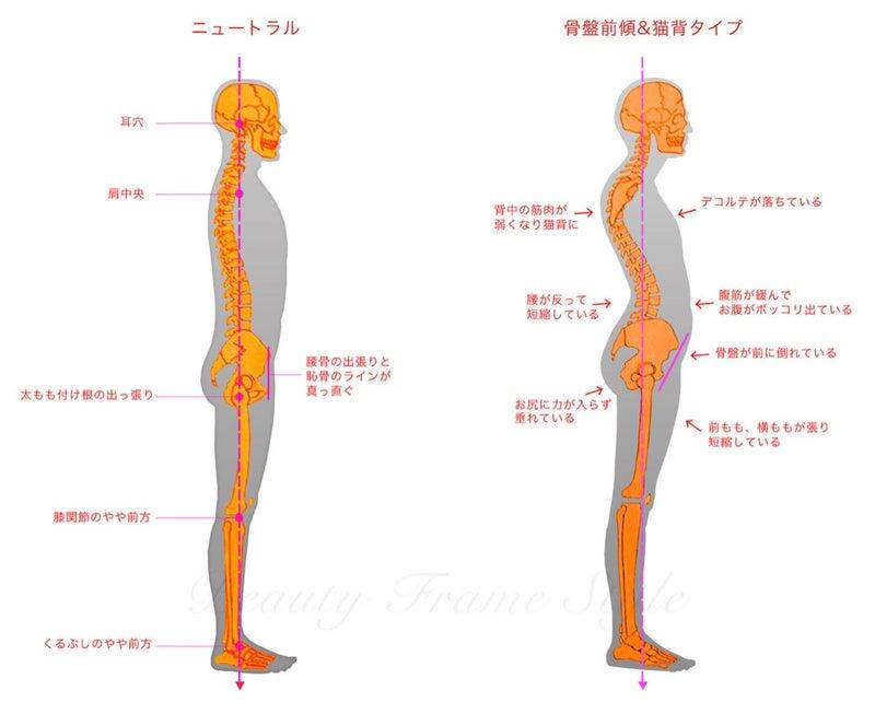 後 反り 腰 傾 骨盤