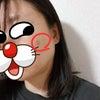 日本でシミ取りに挑戦<1>の画像