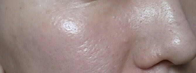 アヤナスワイエスラボ182日目の毛穴写真