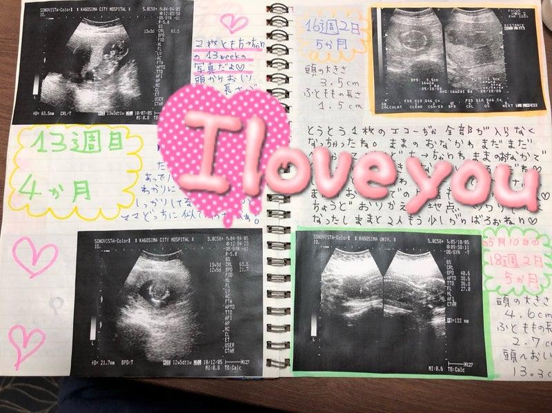 記録 妊娠