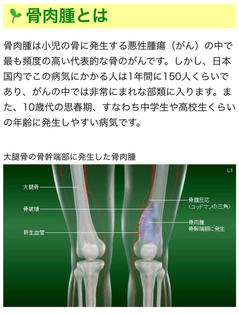 骨 肉腫 と は