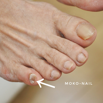 足の小指ないんですけど大丈夫ですか??   秋津、清瀬、所沢ネイルサロン
