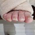 なぜ足のゆび先の皮膚が分厚くなってくるのか?